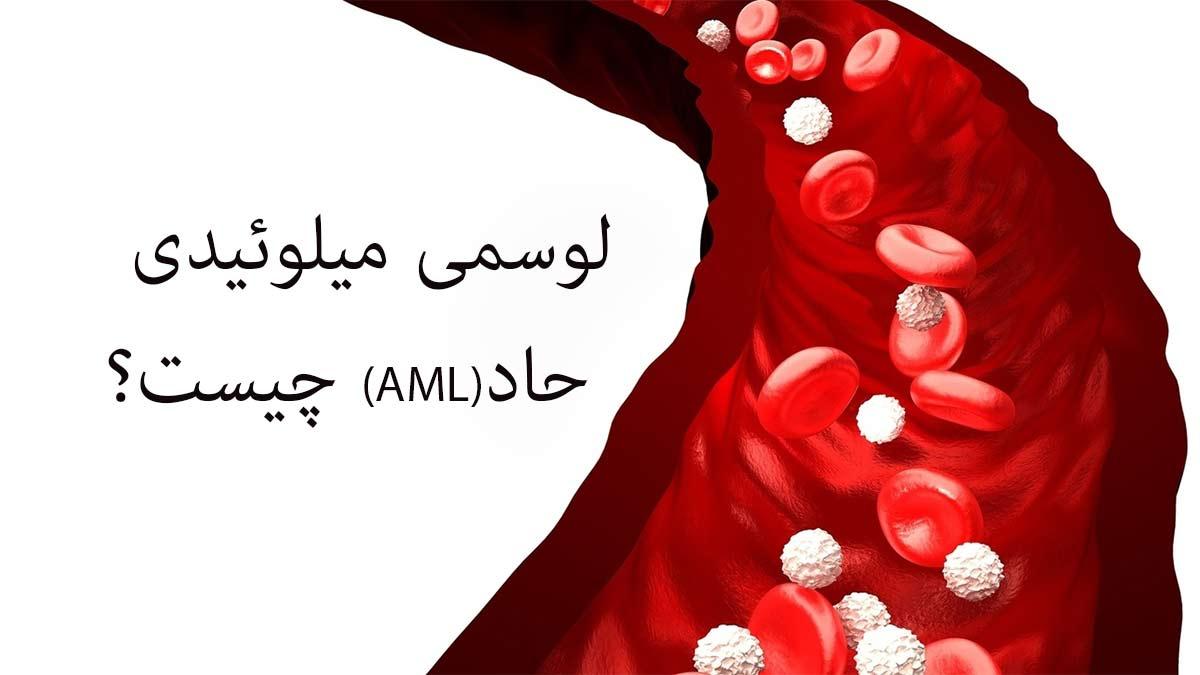 لوسمی میلوئیدی حاد (AML)