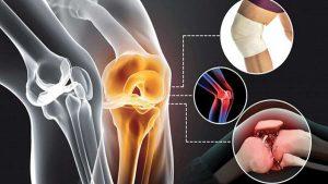 آرتروز زانو و روشهای درمان آن