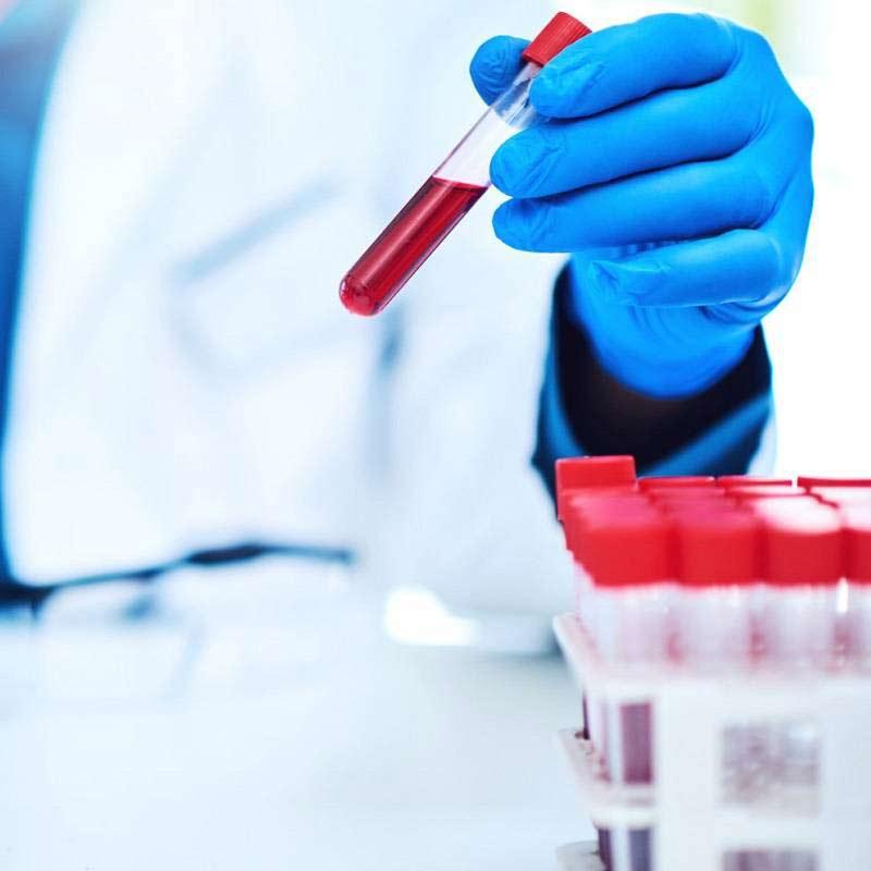 راهکارهای درمانی AML