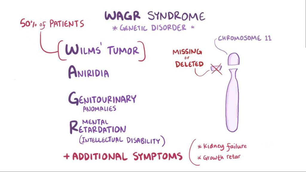 WAGR syndrome